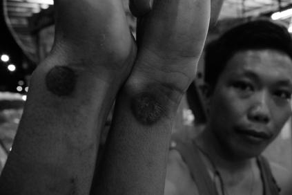 """AKP 73. This [burn] is a symbol of the brotherhood. I burn [myself] like this because this is a symbol of AKP."" -Adz, in Kota Kinabalu, Malaysia."